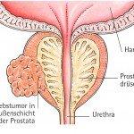Prostatakrebs, Prostatakarzinom, prostate cancer