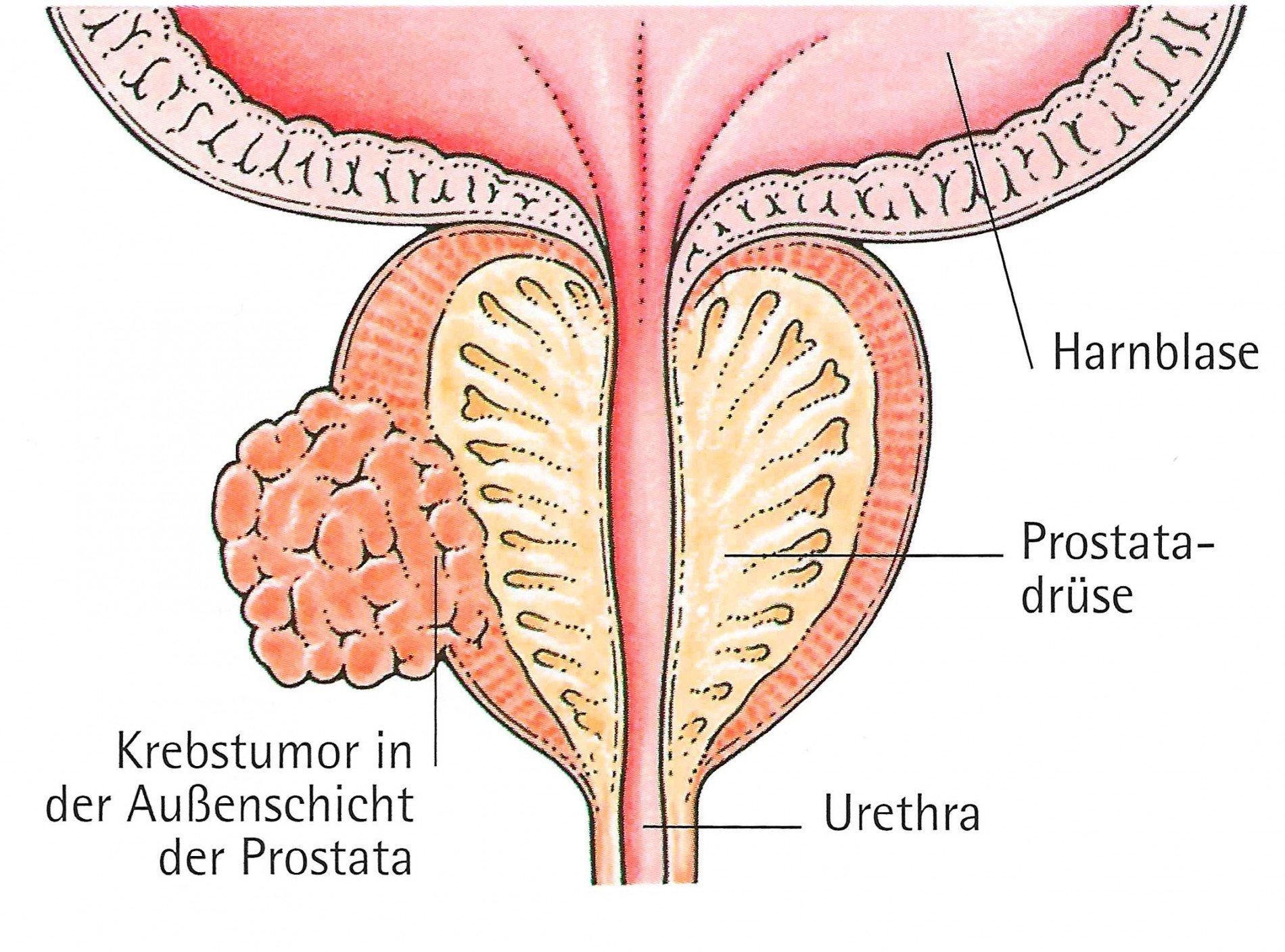 azinären adenokarzinoms der prostata