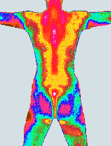 Prostatakrebs, passive Hyperthermie, Überwärmung