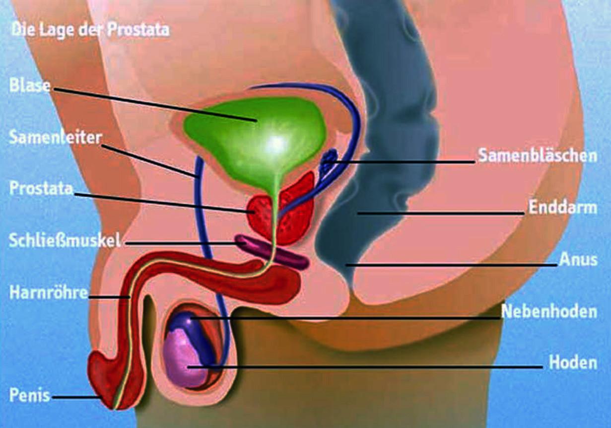 bestrahlung prostatakrebs erfahrungsberichte