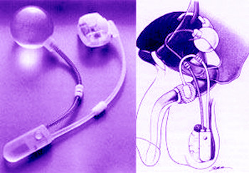 prostatakrebs inkontinenz