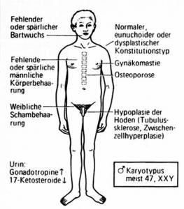 Klinefelter-Syndrom, Mangel an Testosteron