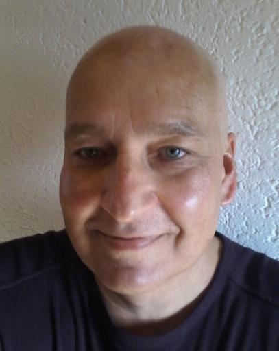 ohne Haare, Glatze nach Chemo am 14.11.14
