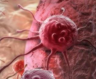 Prostatakrebs Schocktherapie
