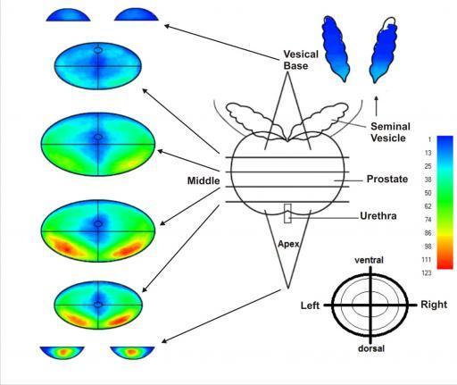 Tumore in der Prostata, Verteilung